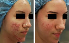 ACNE SCAR REMOVAL-CENTERS-CLINICS-HOSPITALS-DERMA HAIR-SKIN SPECIALITY-JP NAGAR-2ND PHASE